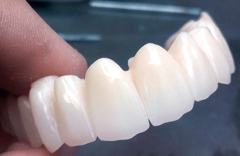implantes dentales zirconio